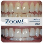 zoom_before_after_2